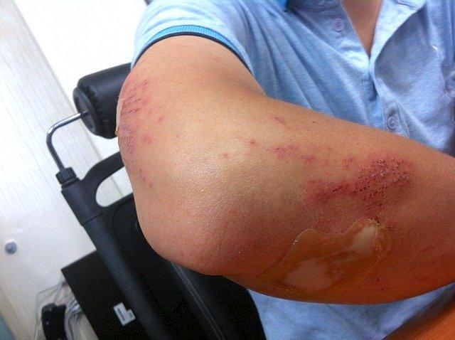 elder abuse bruising