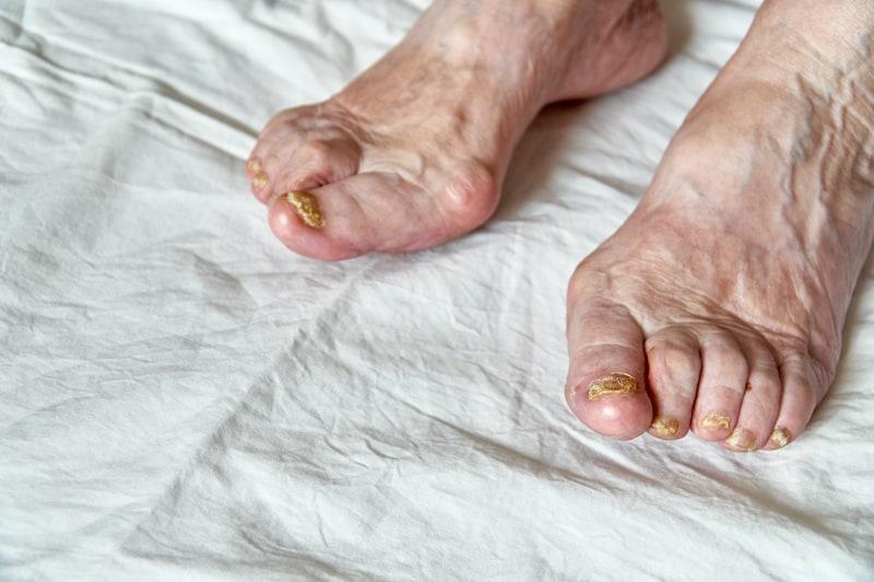elderly nail fungus