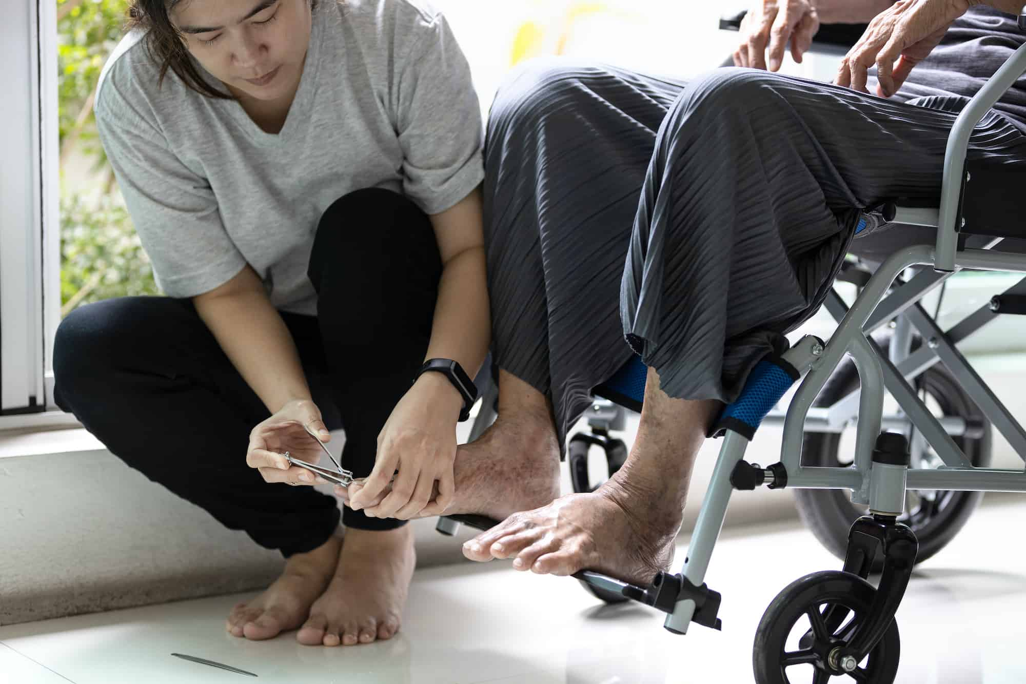 clipping elderly toe nails